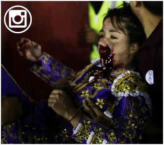 PARTE MÉDICO Gravísimo percance en Puebla