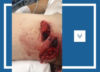 DECLARACIONES Herido grave ayer en Colmenar Lipi